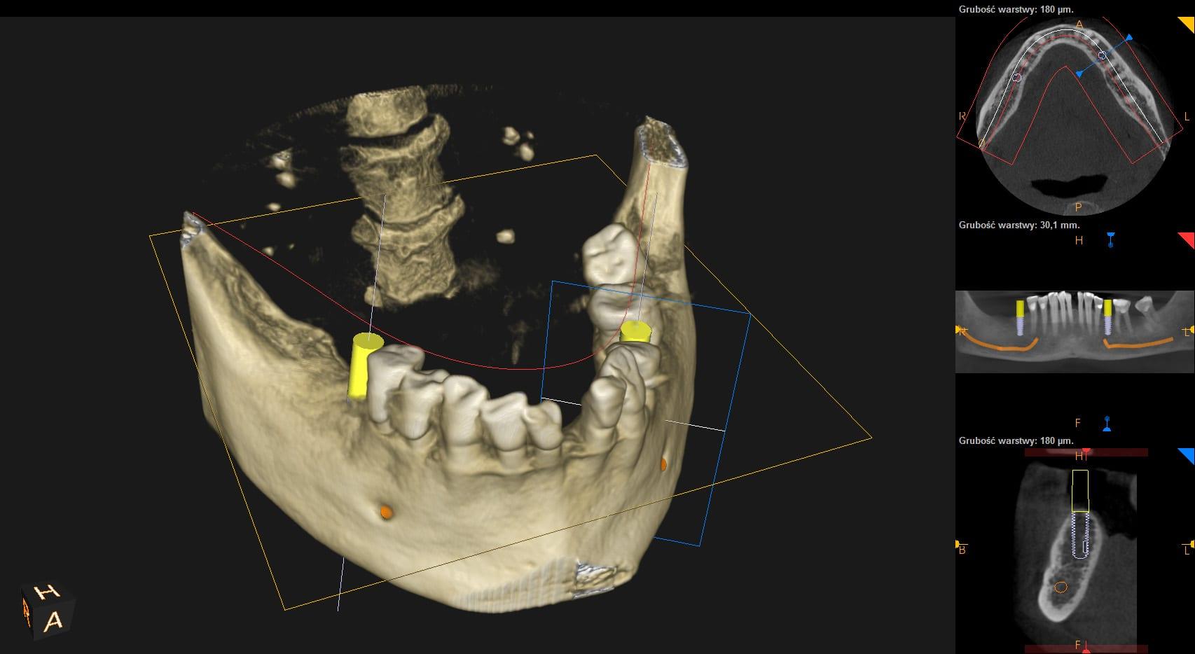 Implanty zębów Chorzów