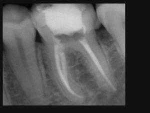 Endodoncja zęba